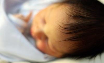 赤ちゃんの湿疹