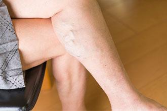 下肢静脈瘤原因