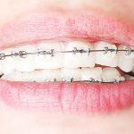 顔が変わる!?大人の歯列矯正のデメリットとは?