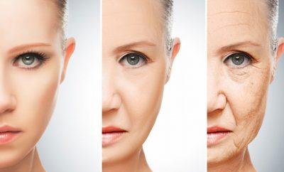 年齢肌改善
