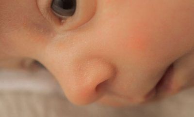赤ちゃんは鼻血